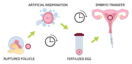 Colored in vitro fertilization IVF flat infographics with steps of additional techniques vector illustration. Ruptured follicle, artificial insemination, fertilized egg and embryo transfer. Isolated on white  イラスト・ベクター素材