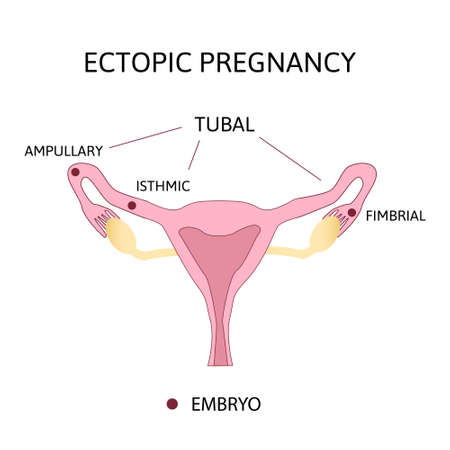 Ectopic Pregnancy. Types of Tubal pregnancy, ovarian, fimbrial. medical diagram with female reproductive system and various embryo attachment locations.