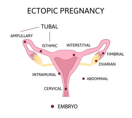Ectopic Pregnancy. Types of Tubal pregnancy, ovarial, abdominal, cervical pregnancy. medical diagram with female reproductive system and various embryo attachment locations.