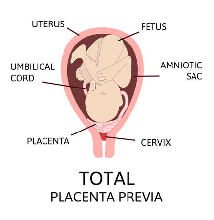 Different Placental Locations During Pregnancy. Major and Normal placenta previa, total and partial. Pathology. Colored vector illustration isolated on white.