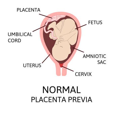Verschiedene Orte der Plazenta während der Schwangerschaft. Große und normale Plazenta praevia, total und partiell. Pathologie. Farbige Vektorillustration lokalisiert auf Weiß.