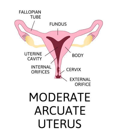 The shape of the uterus, the female reproductive organ. normal, mild arcuate, moderate, severe, bicornuate. Colored medical vector illustration isolated on white.