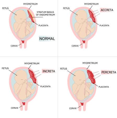 Placenta accreta. part of placenta attaches abnormally to the myometrium. Three grades of abnormal attachment illustrated according to the depth Accrete, increta, percreta. colored medical vector illustration