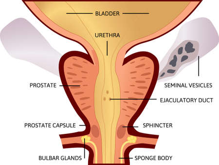 prostate, an exocrine gland of the male reproductive system. Within it sits the urethra coming from the bladder which is called the prostatic urethra and which merges with the two ejaculatory ducts. Illustration shows sphincter, bulbar glands, sponge body. Иллюстрация