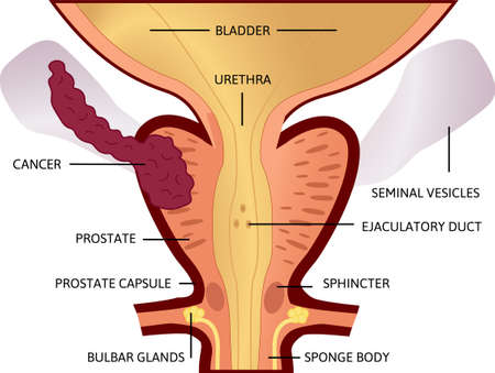third stage of prostate cancer. The tumor is big and located in prostate and developed into seminal vesicles. From a small tumor to an affected bladder. vector illustration. Anatomy and health.