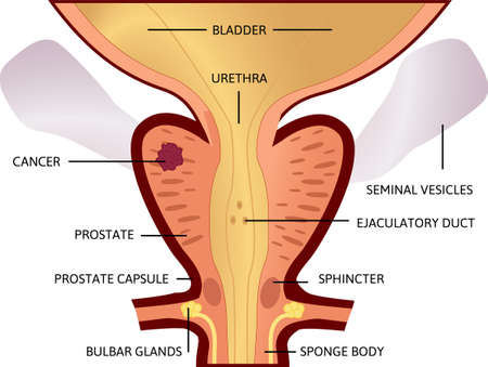 first stage of prostate cancer. The tumor is small and located in prostate. From a small tumor to an affected bladder. vector illustration. Anatomy and health.