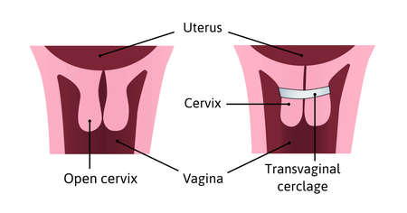 Cervical cerclage tightening of cervical opening during pregnancy. problem, injury. uterus with open cervix and light blue cerclage on it. vector illustration marked with lines. Medical drawing isolated on white
