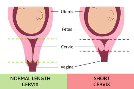 medical vector illustration about normal and short cervix. Pregnancy problem. Child in womb or uterus. Danger.
