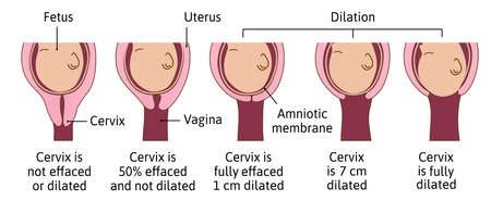 Cervical effacement and dilation during labor or delivery. Cervix changes from not effaced and dilated to fully effaced and totally dilated. Vector medical illustration.