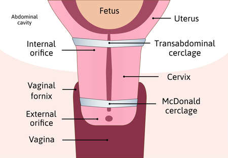 Transabdominal cerclage tightening of cervix opening during pregnancy. Anatomy of cervix, McDonald cerclage. uterus with cervix weakness and blue cerclage on it. vector illustration marked with lines.
