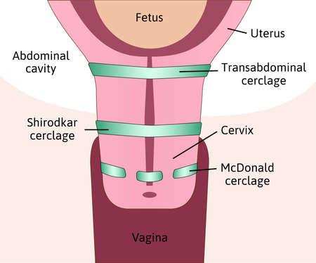 types of Cervical cerclage or cervical stitch, treatment for cervical weakness. Transabdominal, Shirodkar and cerclage. Fetus in womb, uterus. Colored medical vector illustration.