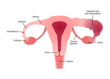 Hydrosalpinx. fallopian tube blocked with a watery fluid due to injury or infection. Uterus with healthy and inflamed tube. Marked with lines. Vector medical illustration