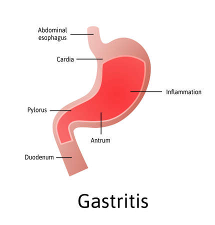 Gastritis, an inflammation, irritation, or erosion of the lining of the stomach. Medical vector illustration marked with lines. All parts of stomach Vector Illustration