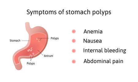 Symptoms of gastric polyps. pedunculated and flat-based polyp. Antrum. Anemia, nausea. Medical vector illustration marked with lines