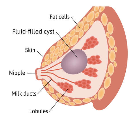 Cyst in the female Breast. Large fluid filled cyst located among lobules. Medical vector illustration marked with lines. 일러스트