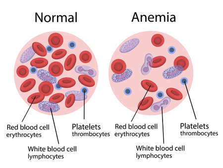 Vector illustration of anemia. Blood composition