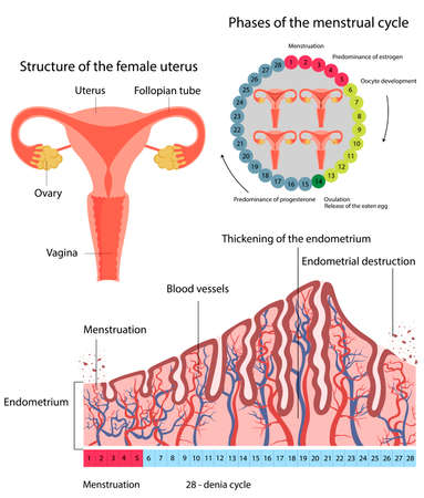 Vector illustration of changes in uterine endometrial destruction.