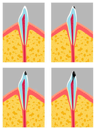 Vector illustration of spoiled teeth. Stages of tooth decay