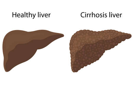 Vector illustration of cirrhosis of the liver and healthy liver