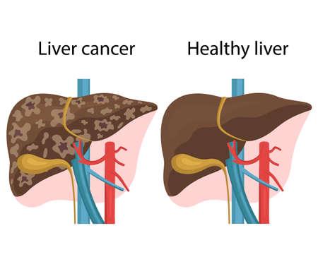 Vector illustration of healthy liver and liver cancer. Liver disease Ilustracja