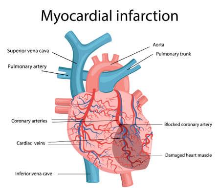 Vector illustration of myocardial infarction Vector Illustration