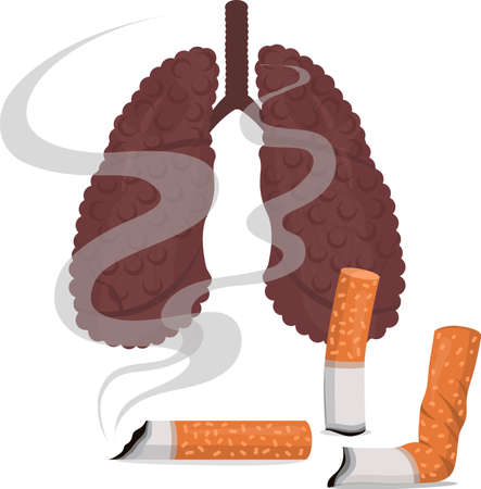 Vector illustration of cigarette butts and light smokers. Lungs of a smoker Vektorgrafik