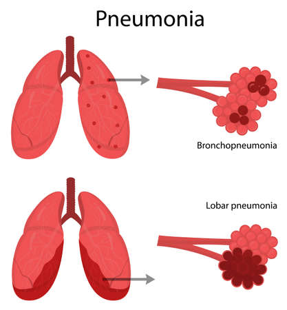 Vector illustration of lung disease. Pneumonia. Medicine and science. The structure of the lungs