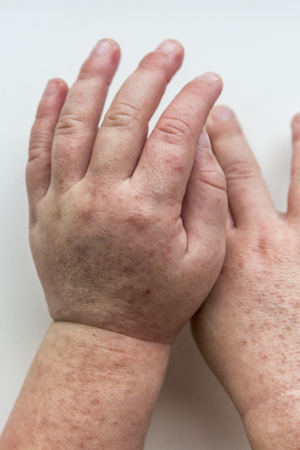 Scarlatina. Two children hands with contagious red small rash. White background.