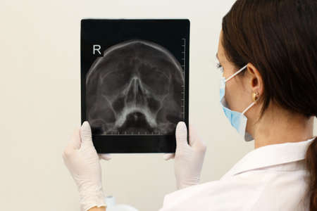 x-ray of the maxillary sinuses Stock Photo