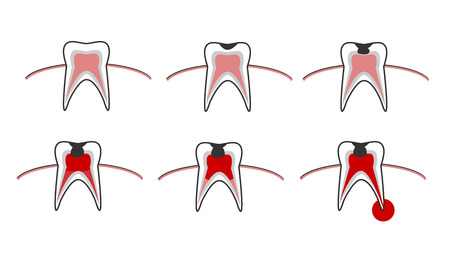 Vector illustration of the stages of caries on the teeth. Dental chart