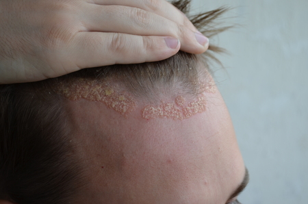 Psoriasis on the skin close-up, scalp, photos of dermatitis and eczema, skin problems, dermatology