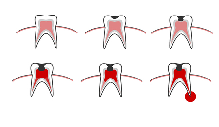 Caries stage, tooth decay scheme with caries, stomatological illustration with dental diseases, point by point schematic vector illustration infographics