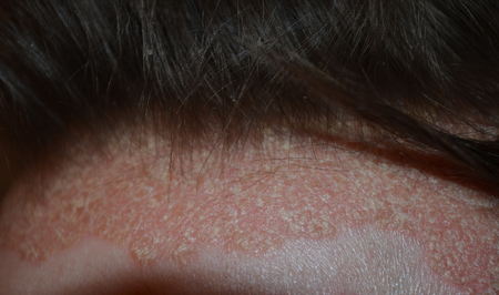 psoriasis on the hairline and on the scalp-close up, dermatological diseases
