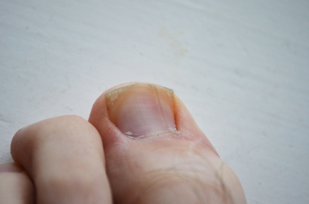 ingrown toenail on the toe, toe on the leg with psoriasis of the nail, medical illustration