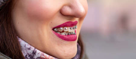 The brace system in the girl's smiling mouth, macro photography of teeth, close-up of red lips. Girl walking on the street