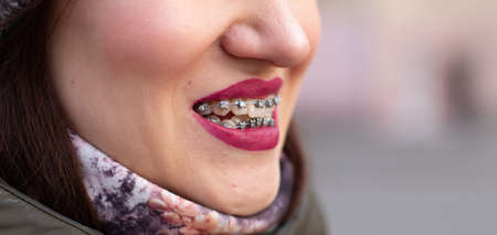 The brace system in the girl's smiling mouth, macro photography of teeth, close-up of red lips. Girl walking on the street Stock Photo