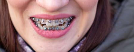 Braces on the girls teeth, macro photo teeth, close-up lips,