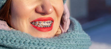 The girl has braces on her teeth. A girl in the winter on the street smiles and braces are visible on her teeth. Smooth teeth from the installation of braces Archivio Fotografico