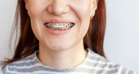 Braces in the smiling mouth of a girl. Smooth teeth from braces. Stock Photo
