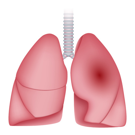 Pneumonia disease lungs icon, realistic style Stock Photo
