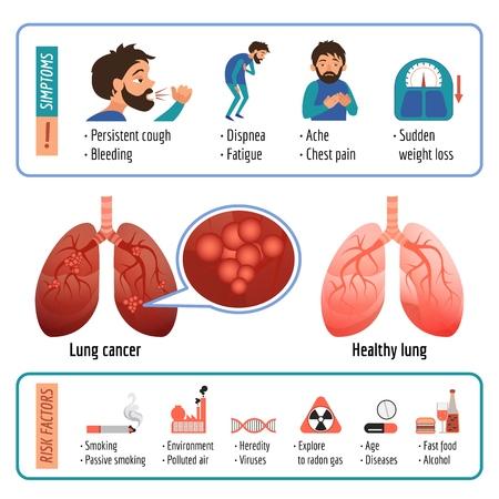 Infographie pulmonaire. Caricature d'infographie vectorielle pulmonaire pour la conception de sites Web Vecteurs