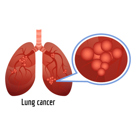 Lung cancer icon. Cartoon of lung cancer vector icon for web design isolated on white background