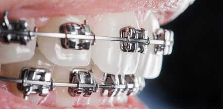 Close-up dental braces on teeth. Orthodontic Treatment. Dental care Concept. Extreme macro