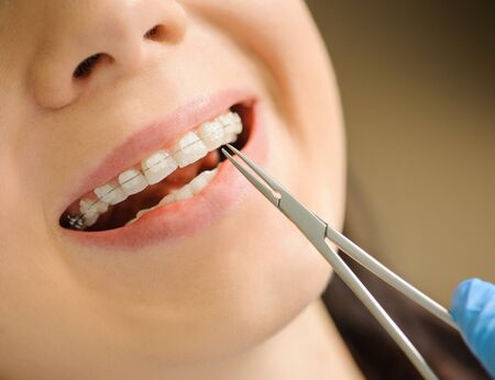 Close-up smiling female with ceramic braces on teeth at the dental office. Dentist holding dental tool - mosquito. Orthodontic Treatment.