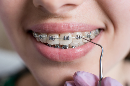 Macro shot of white teeth with braces. Smiling female patient with metal brackets at the dental office. Dentist holding probe. Orthodontic Treatment. Stock Photo