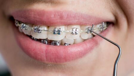 Close-up shot of teeth with braces. Smiling female patient with metal brackets at the dental office. Dentist holding probe. Orthodontic Treatment.
