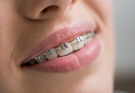 whiten: Macro shot of white teeth with braces. Smiling female patient with metal brackets at the dental office