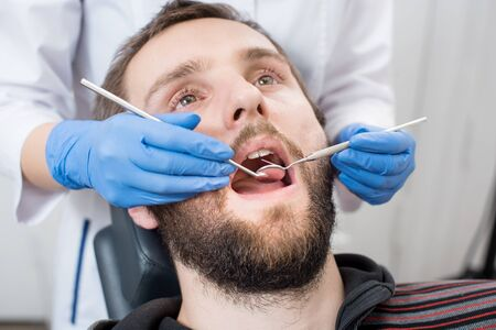 Close up of bearded man having dental check up in dental clinic. Dentist examining a patients teeth with dental tools - mirror and probe. Dentistry.