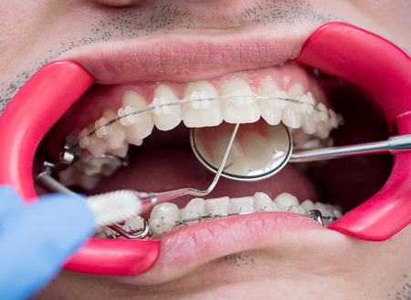 Dentist holding probe and mirror and checking up teeth with brackets at the dental office. Macro shot of teeth with braces and dental retractor. Orthodontic Treatment. Dentistry Stock Photo
