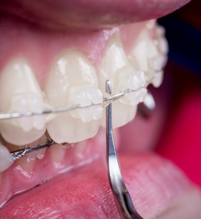 Dentist cleaning teeth with ceramic brackets using dental tool at the dental office. Macro shot of teeth with braces. Orthodontic Treatment. Dentistry Stock Photo
